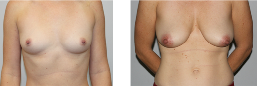 Do I need a Breast Augmentation or a Breast Lift?