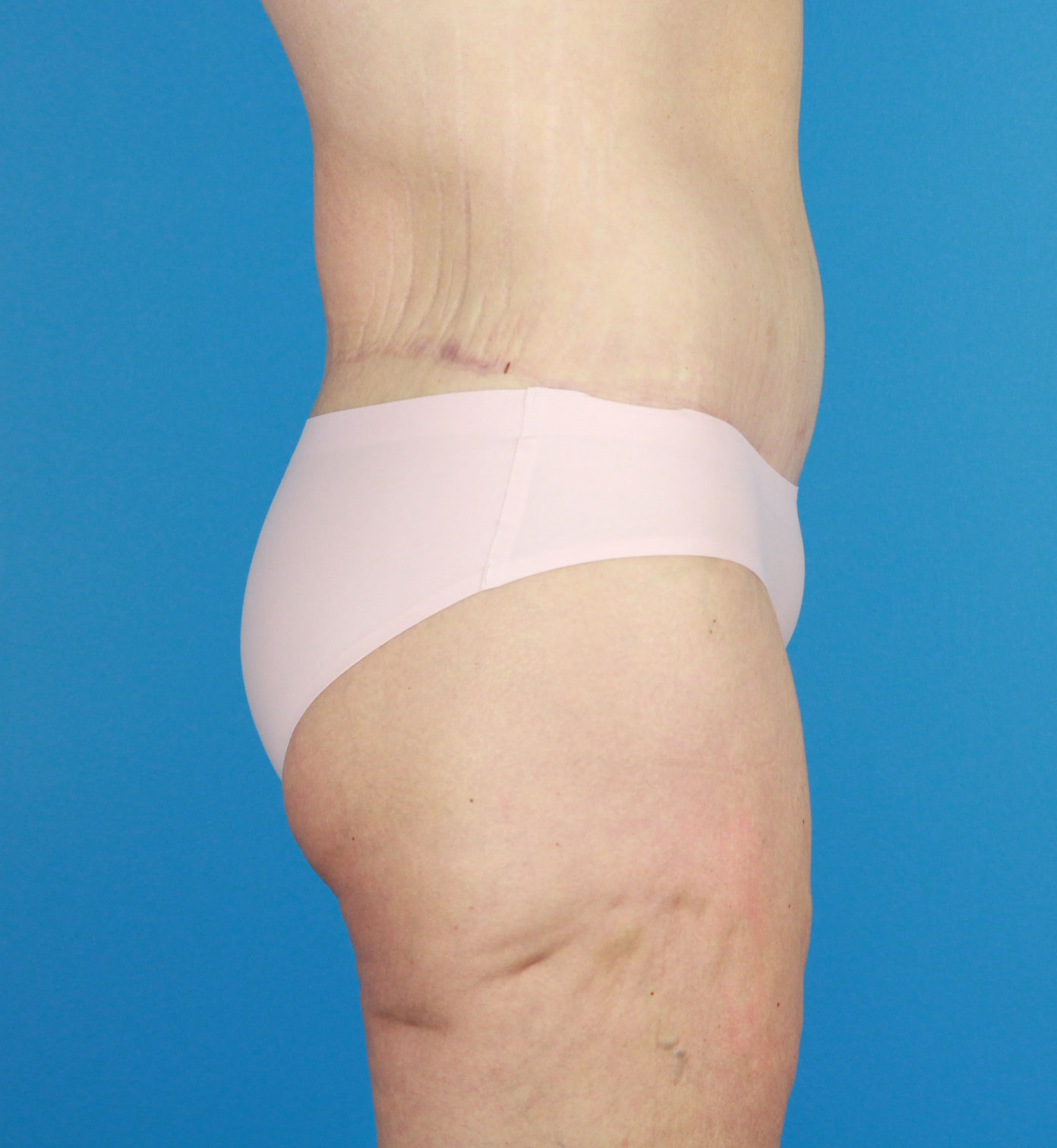 Body Lift Liposuction Before & After Image
