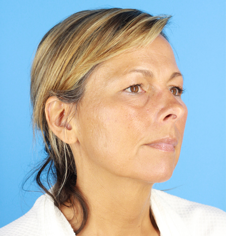 Blepharoplasty and Brow Lift Before & After Image