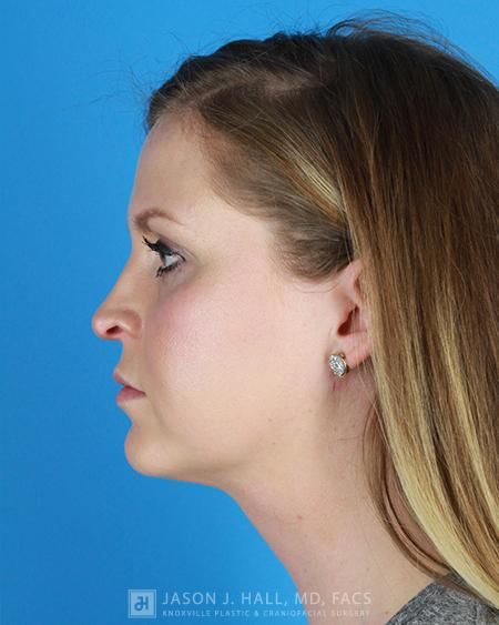 Chin and Neck Liposuction Before & After Image