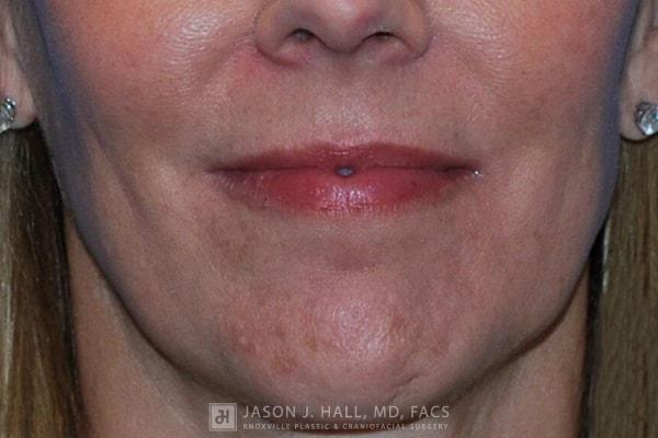 Facial Rejuvenation Before & After Image